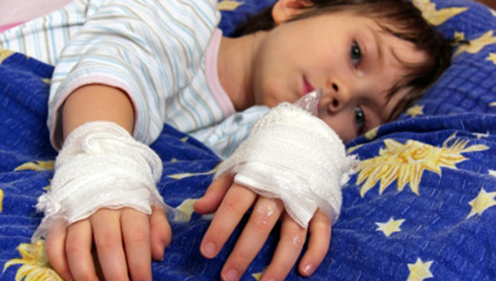 child with bandaged hands