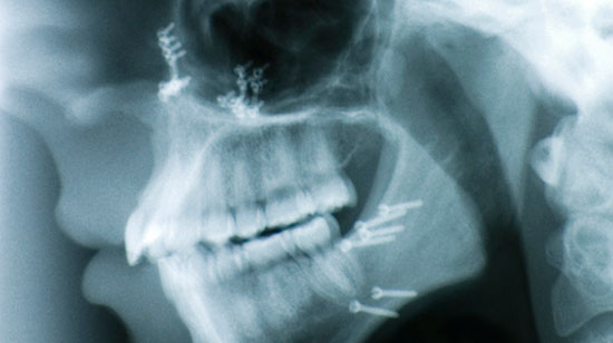face xray after a dog attack