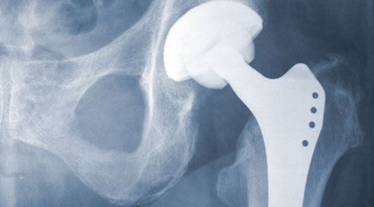 metal-on-metal hip replacement x-ray