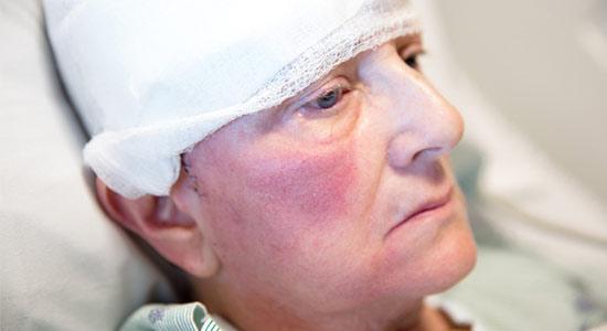 man recovering brain injury