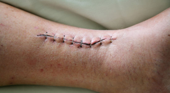Scars From A Car Accident Free Legal Evaluation