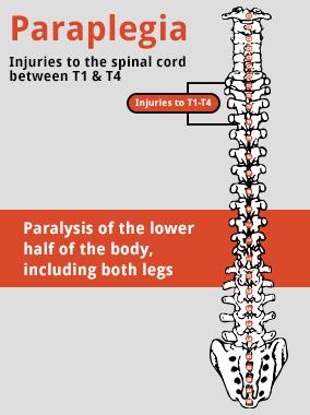 paraplegia diagram