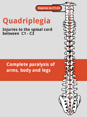 quadriplegia diagram